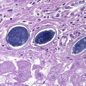 schistosomiasis hepatic hpv tumor in throat