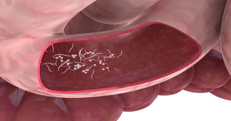 jak zlikvidovat parazity v tele