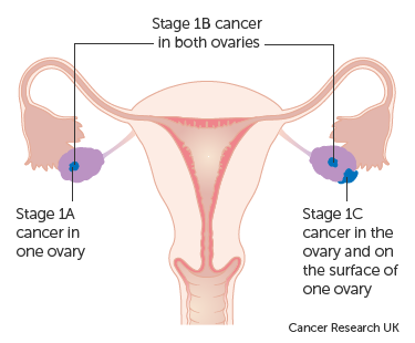 cancerul orofaringian medicamente pentru paraziti intestinali md
