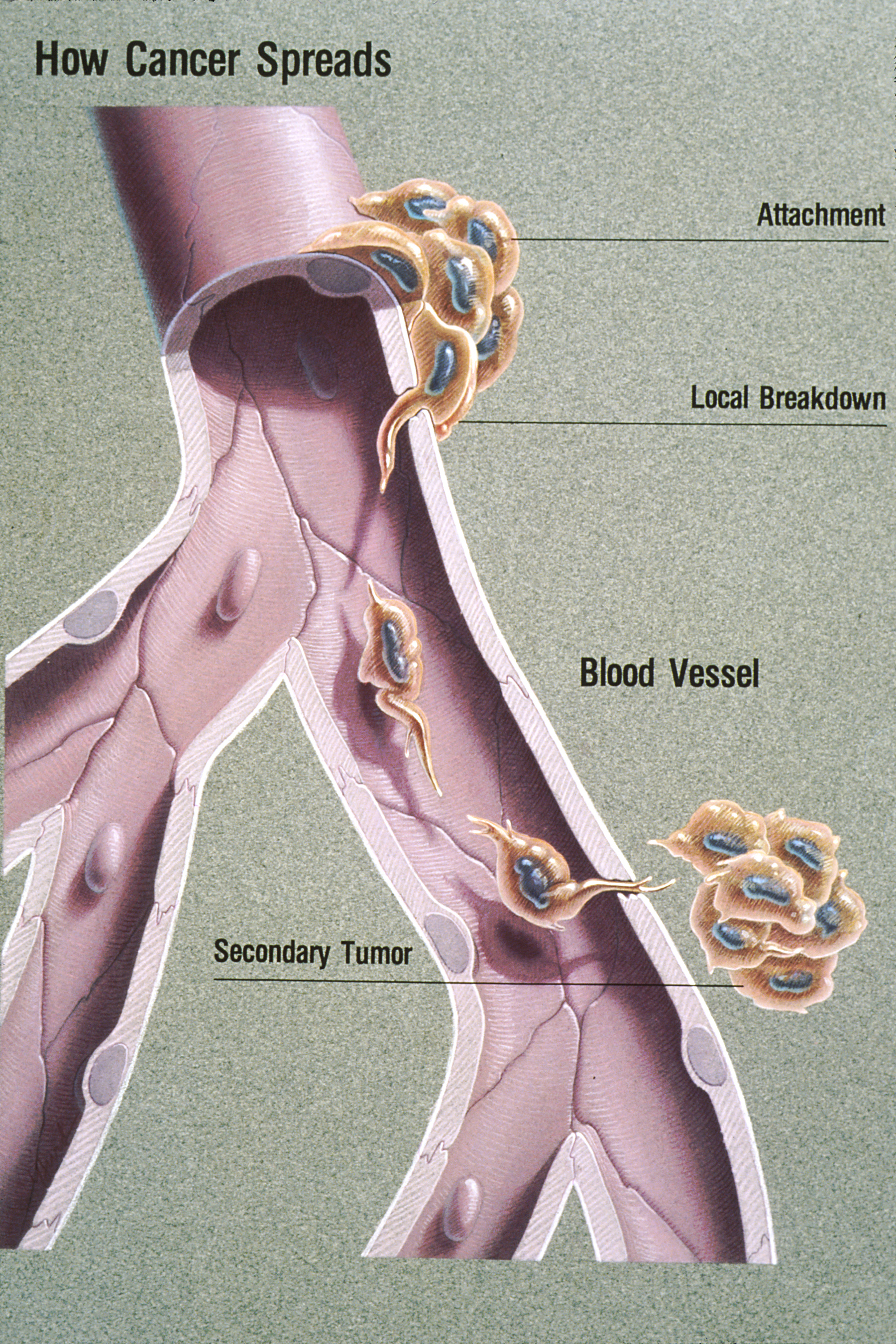 Cât de departe s-a extins boala? Cancerul cu metastaze