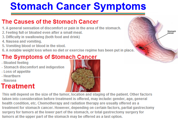 abdominal cancer symptoms female