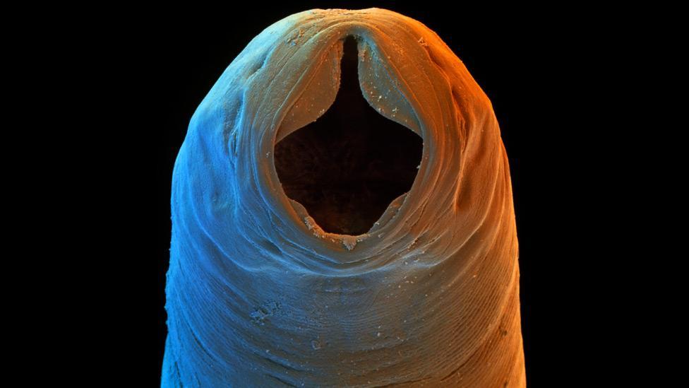 que es papiloma humano contagio borderline pancreatic cancer