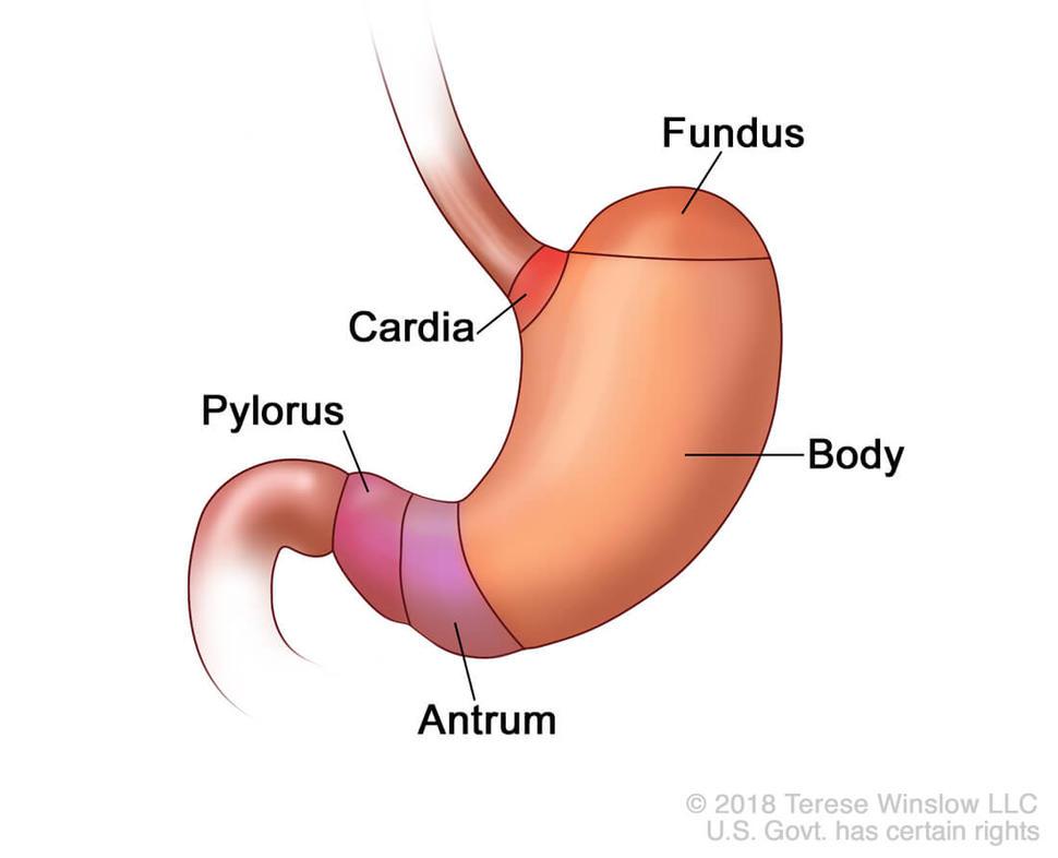 cancer fundus gastric condyloma acuminatum on thigh