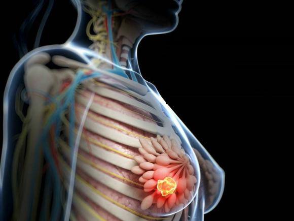 Cancerul de san poate fi vindecat! – MEDSTAR General Hospital