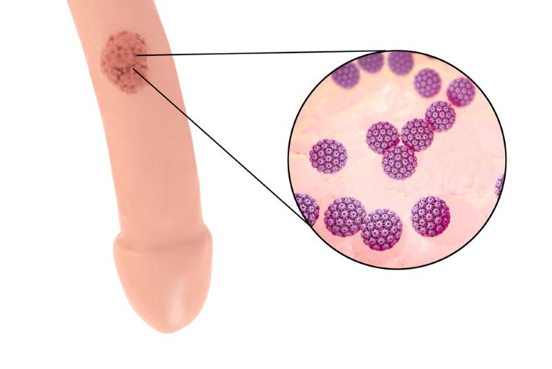 foot wart with hole vph en boca imagenes