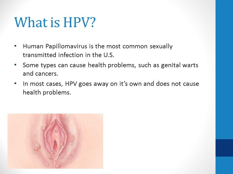 hpv en herpes que es el papiloma humano y como se cura