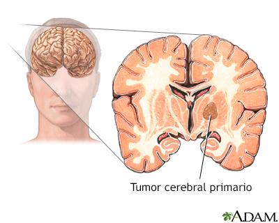 cancer cerebral tratamientos alternativos