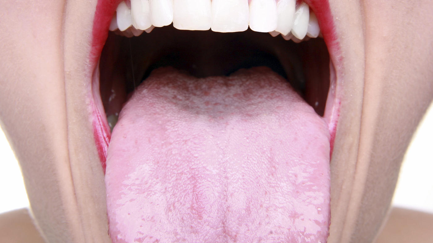 hpv cancer mouth