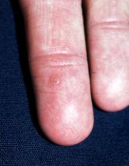 Fișier:Papilloma Virus (HPV) EM.jpg
