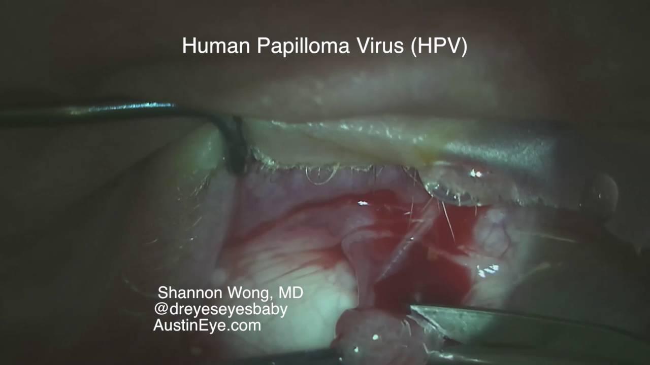 papillomavirus detection femme hpv causes mild dysplasia