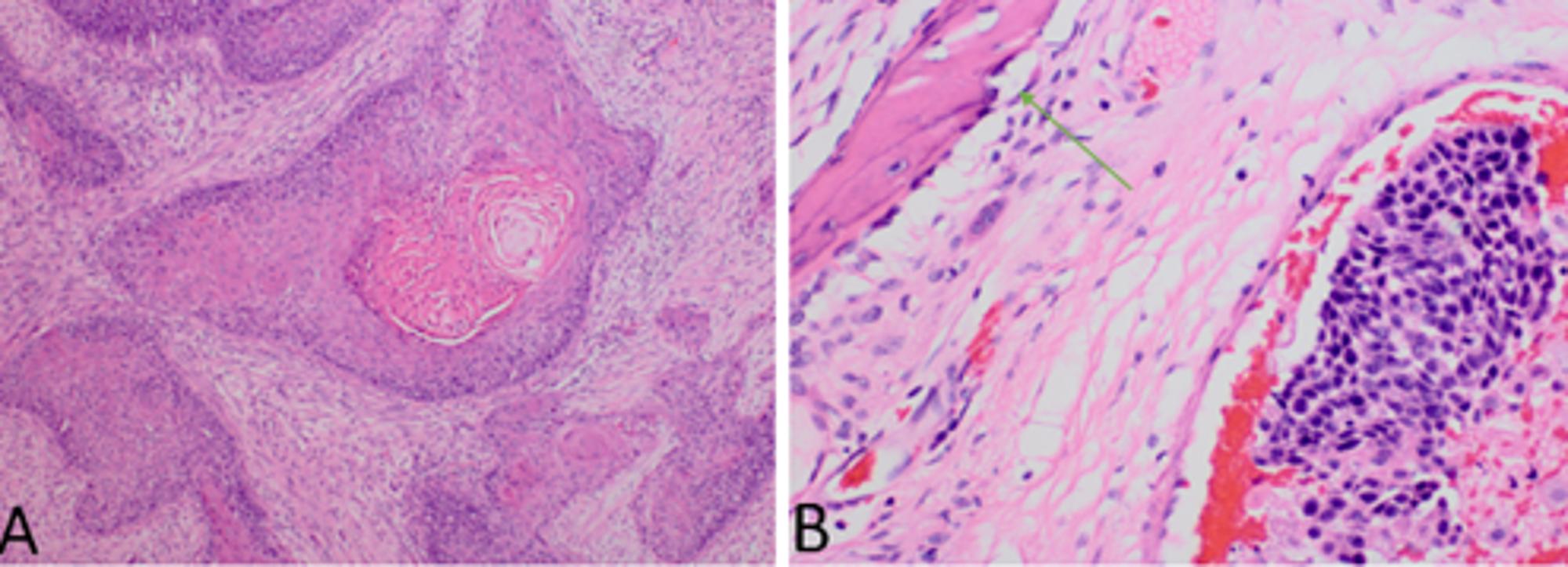 nasal inverted papilloma causes human papillomavirus in hands