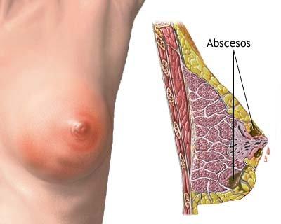 cancer mamar inflamator simptome recurrent papillomatosis