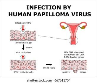 papillomavirus laser grossesse helmintox sirop notice