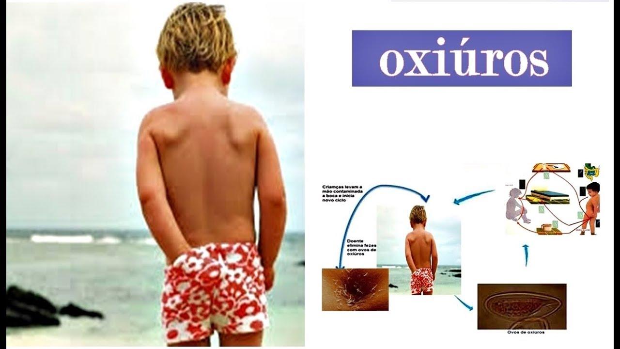 OXIUROSE - Definiția și sinonimele oxiurose în dicționarul Portugheză