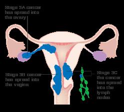 peritoneal cancer endometriosis