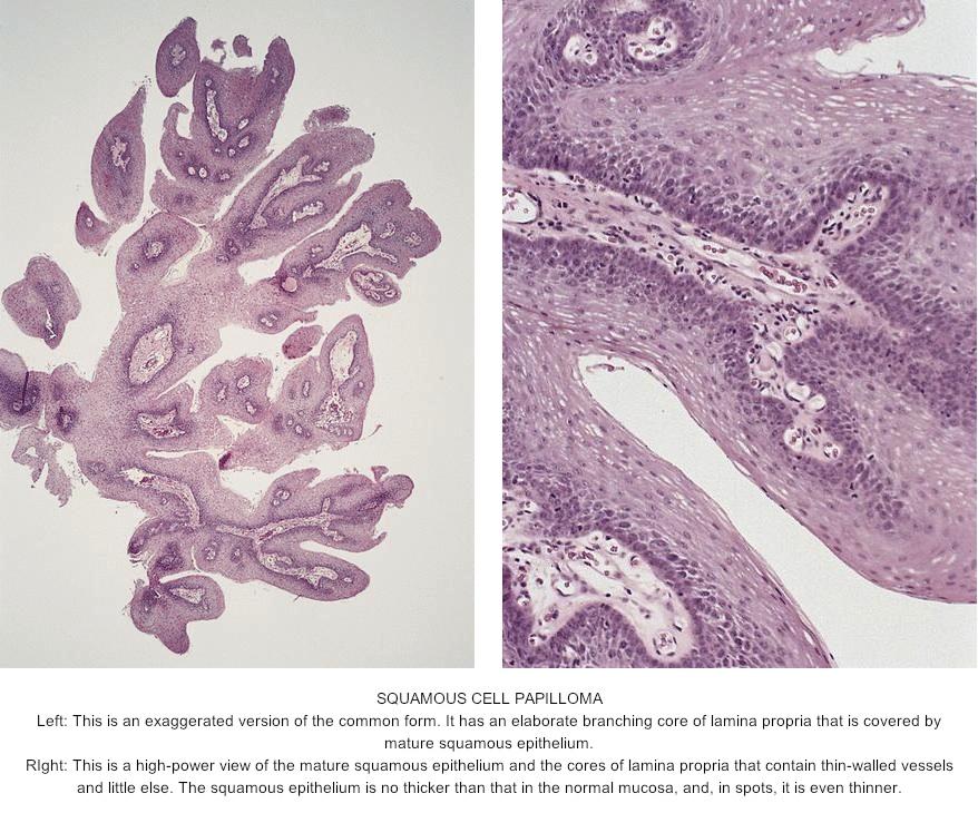 squamous papilloma of eyelid pathology