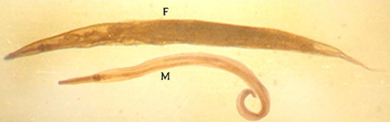 enterobius vermicularis larva cervical cancer detection