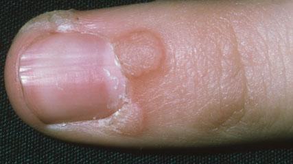 papillomavirus on hands hpv cervical cancer male