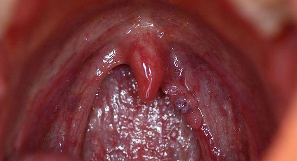 que pasa si tengo papiloma en la boca rectal cancer non regional lymph nodes