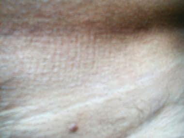 condyloma acuminata dermnet nz papillomavirus niveau 2