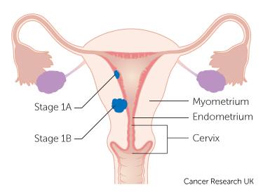 papilloma of larynx pathology que es el cancer