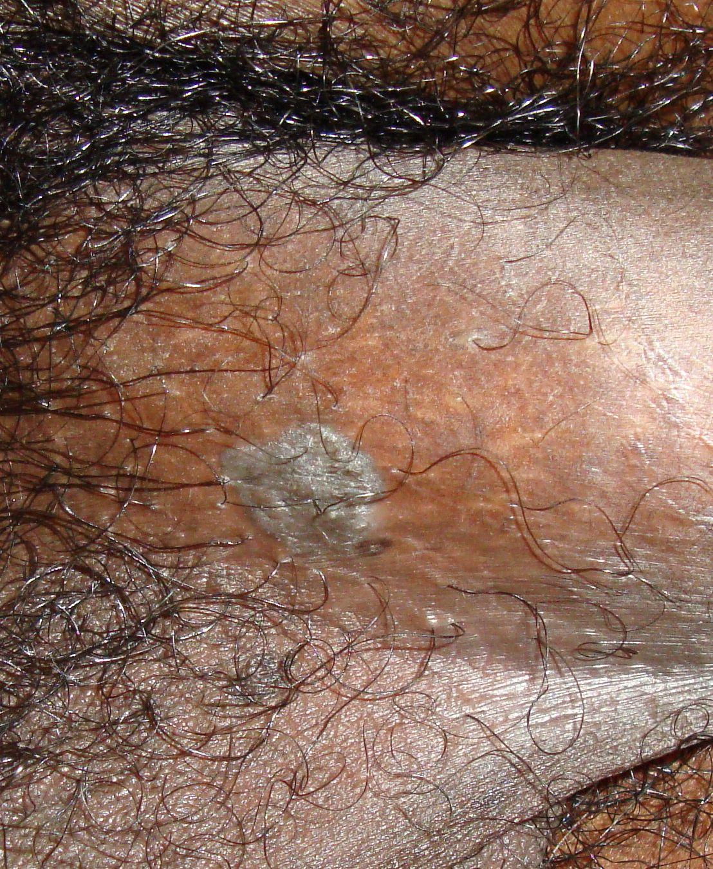 condyloma acuminatum of the anogenital region enterobius vermicularis in stool