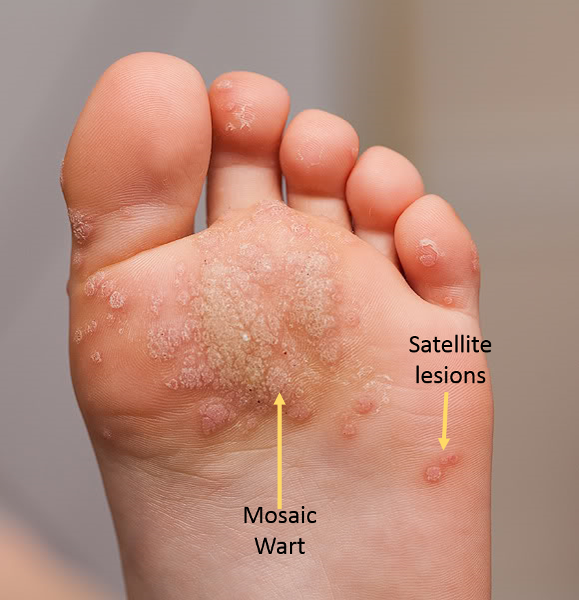 what causes papilloma on foot