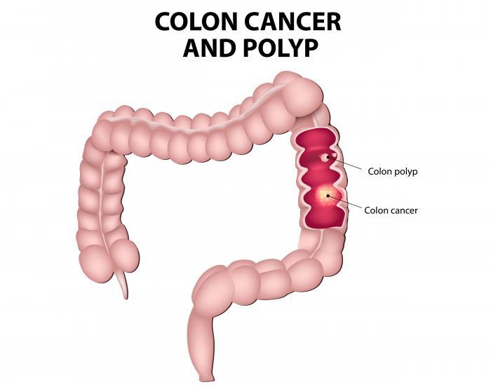 colorectal cancer definition medical