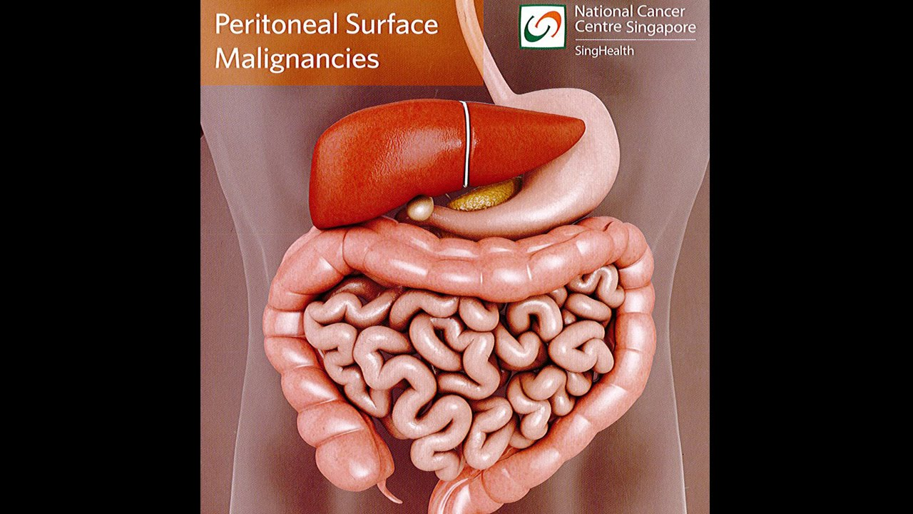 cancer peritoneal vindecare pancreatic cancer back pain