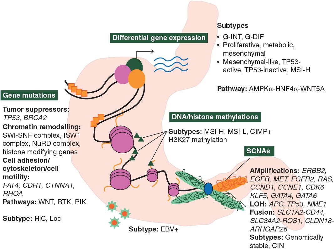 gastric cancer molecular classification