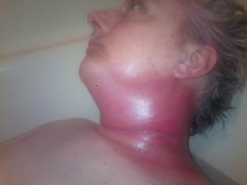 hpv throat cancer treatment detoxifiere ganglioni limfatici