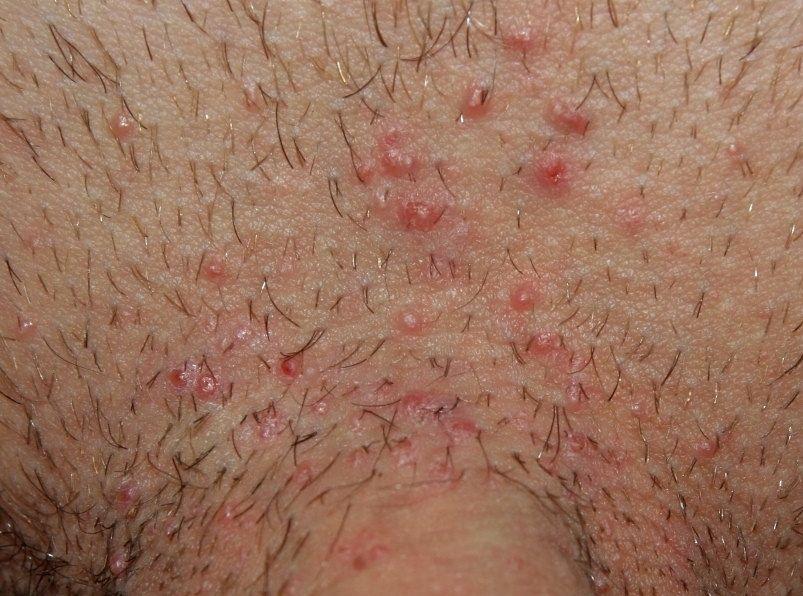 Tinea cruris, infecţia regiunii inghinale la bărbaţi – diagnostic şi tratament