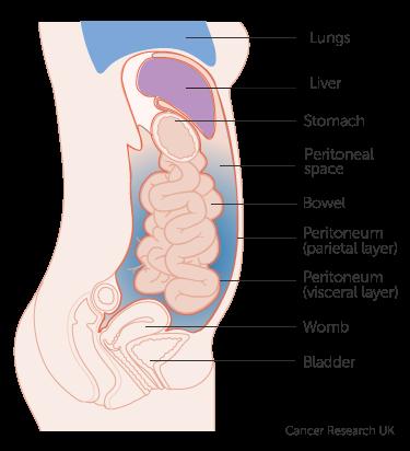 liver cancer abdominal fluid