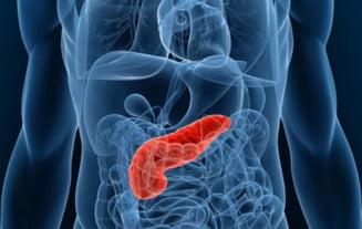 Cancerul Pancreatic   Centru Oncologie Severin