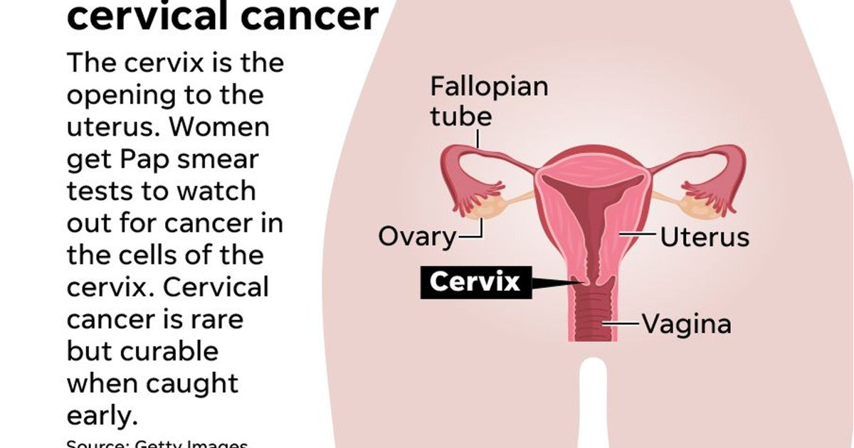 cervical cancer hysterectomy