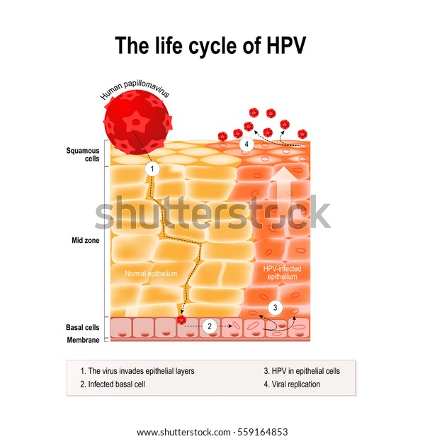 papanicolau normal y anormal hpv warts percentage