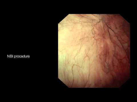 papilloma vestibular adalah