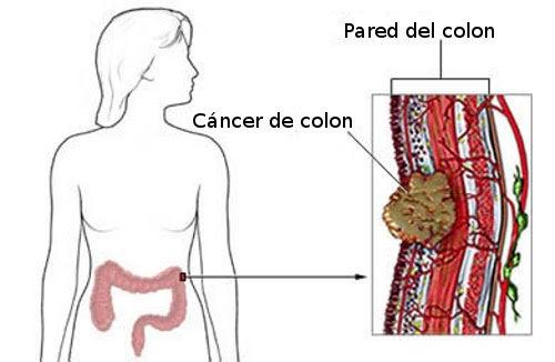hpv impfung fur jungen impfstoff cervical cancer how much bleeding