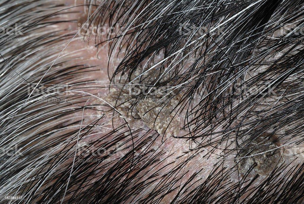 toxine de salmnella typhi