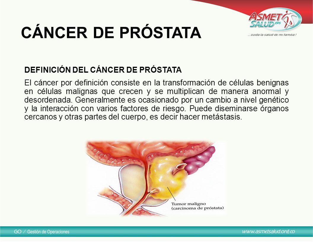 cancer de prostata definicion