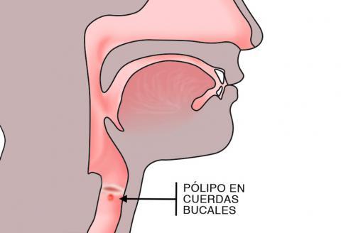 infección del tracto - Traducere în română - exemple în spaniolă | Reverso Context