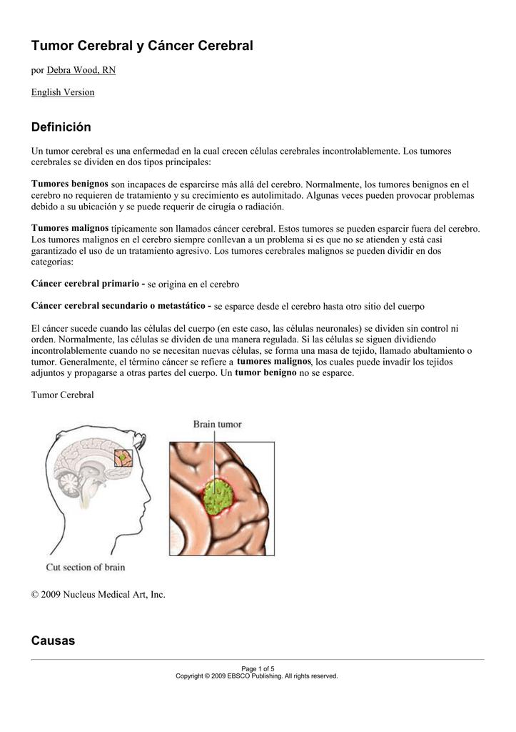 cancer cerebral secundario tratament medicamentos oxiuri