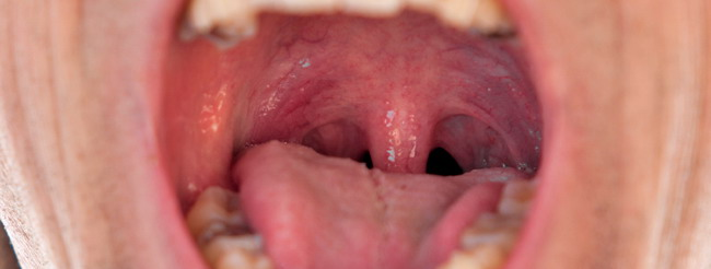 papillomavirus gola sintomi