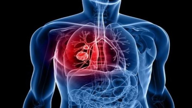cancer pulmonar femei virusi raceala