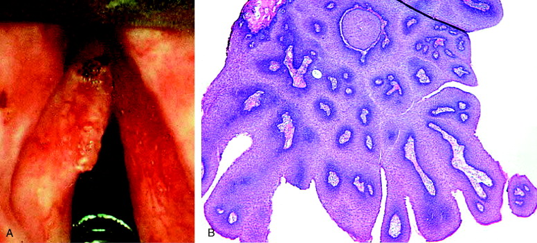 papilloma larynx pathology