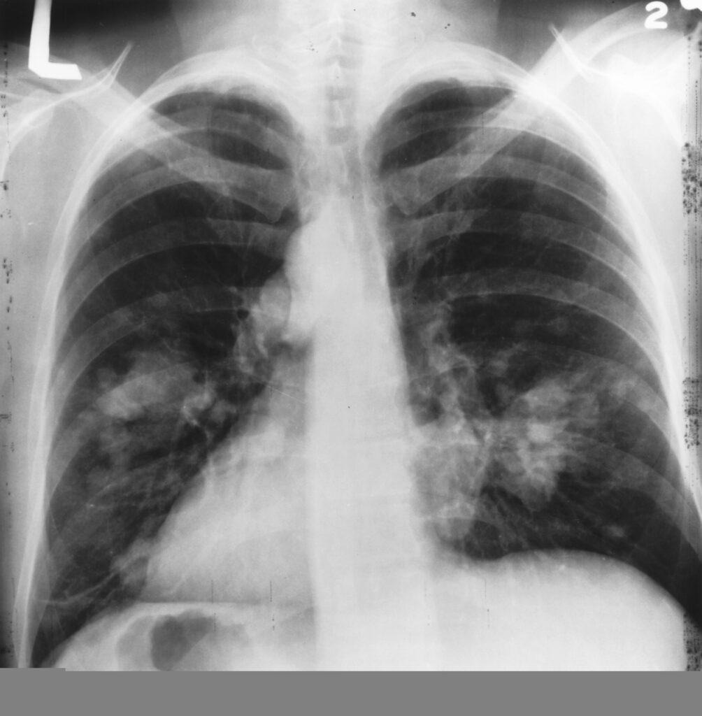 cancerul pulmonar tratament cancer pancreatic enzymes