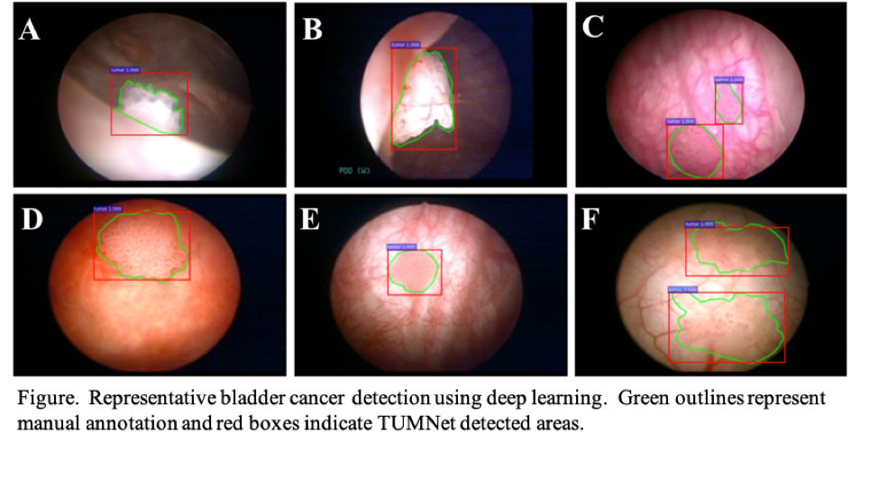 papillary lesion bladder can hpv cause benign tumors