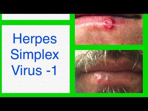 hpv causes herpes como eliminar oxiuros en el embarazo