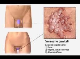 prevenţia - Traducere în italiană - exemple în română | Reverso Context