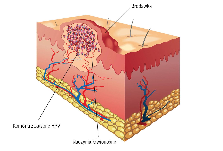 papilloma virus negativo vph en boca imagenes